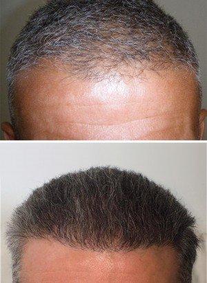 Cheap hair transplant cost