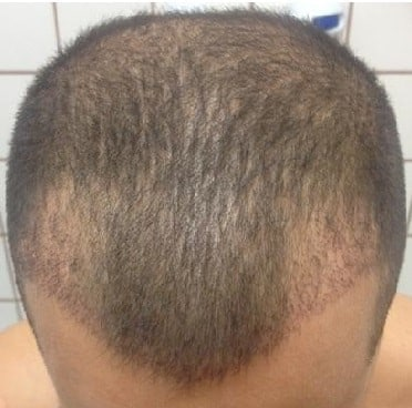FUE hair transplant - after 3 weeks