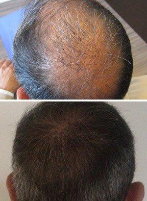 FUE hair transplant Alexandre