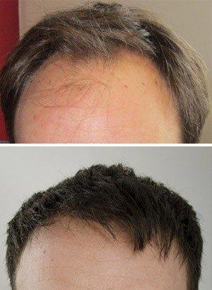 Hair transplant costs