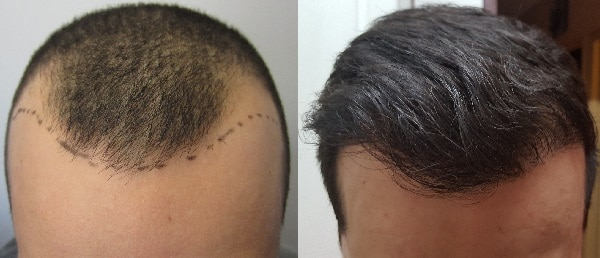 hair transplant before - after