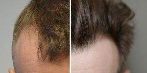 Hair transplantation references