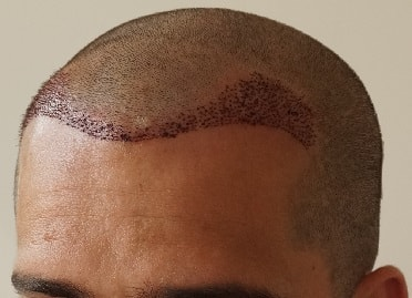 Right after the hair transplantation