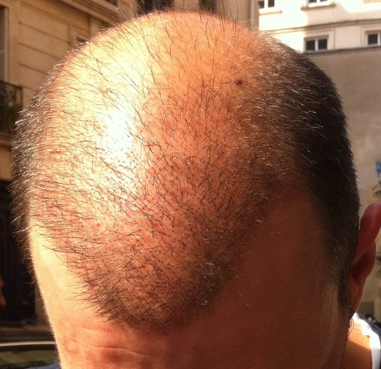 3 weeks after the hair transplant surgery