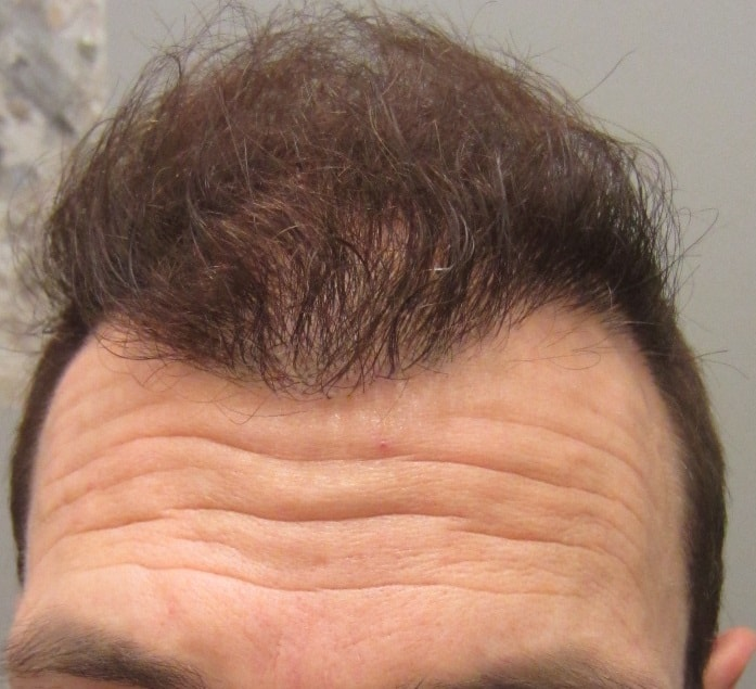 6-months-after-hair-transplant