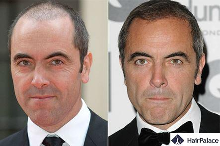 Hair transplant James Nesbitt