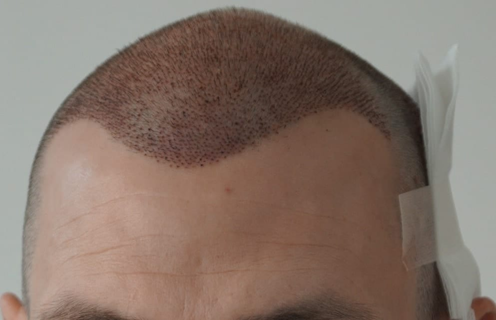 after-hair-transplant