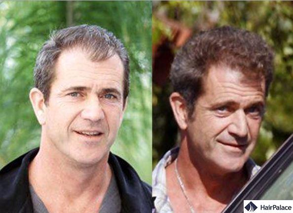 Hair transplant Mel Gibson