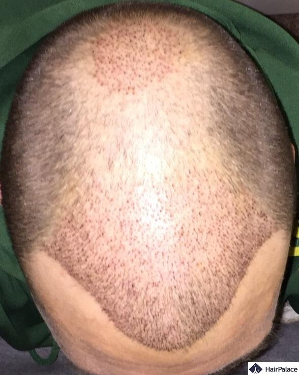 1 week after the hair transplant