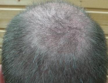3-weeks-after-the-hair-transplantation