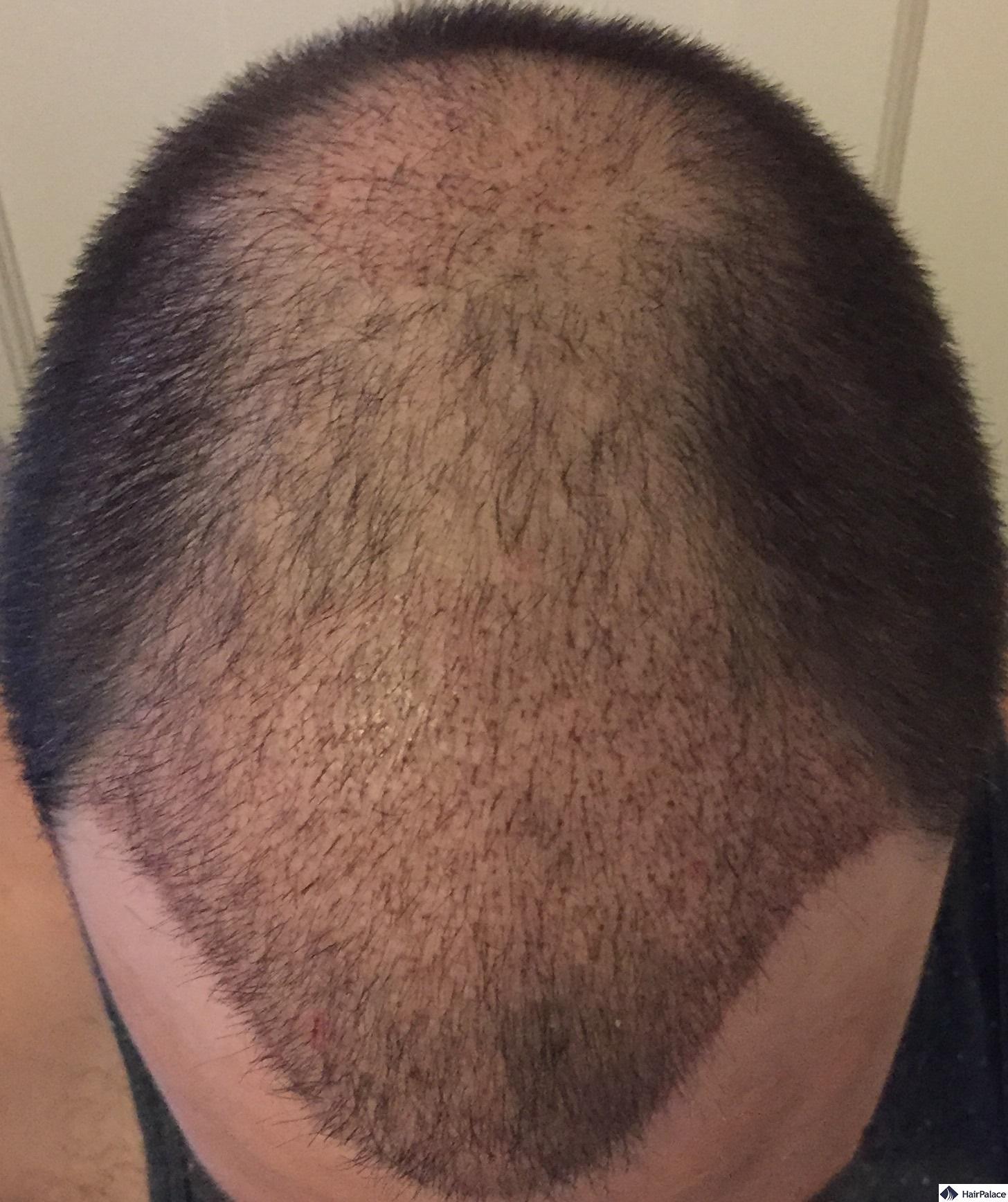 3 weeks after hair transplantation