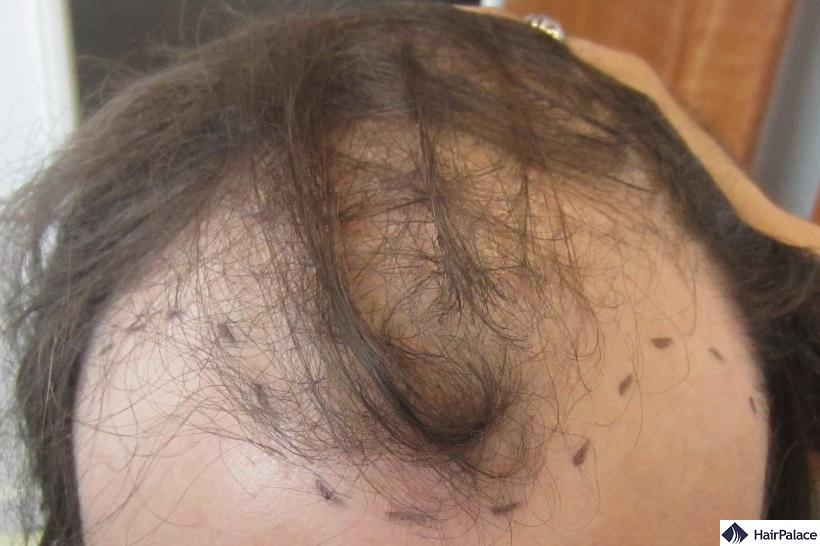 before-hair-transplant-front