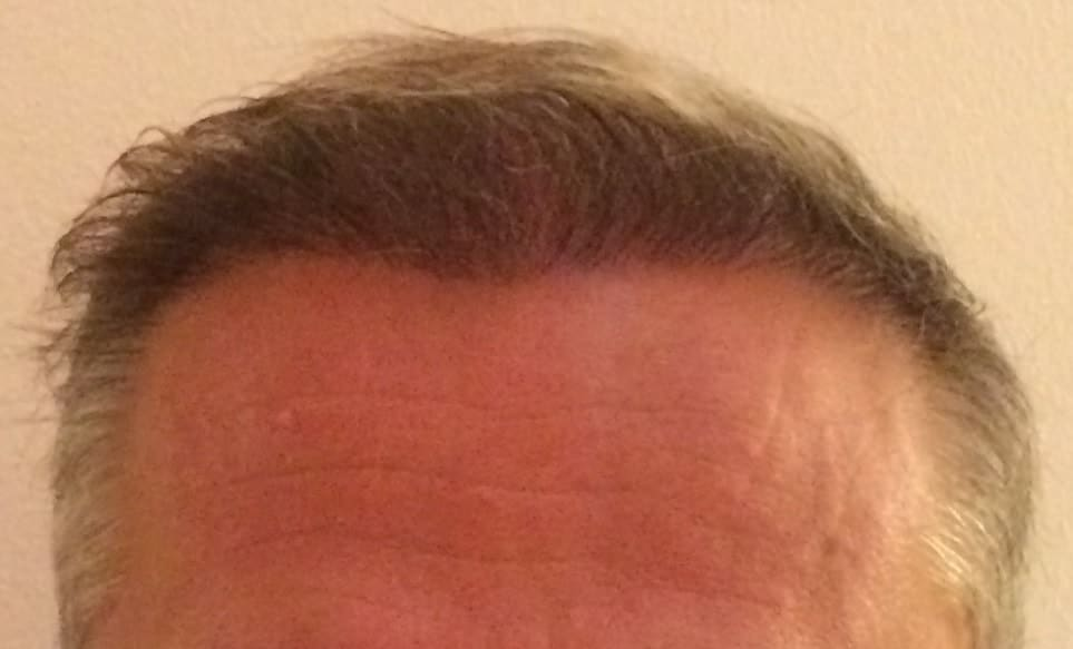 front-hair-transplant-1-year