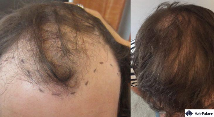 Mark before-after 6000 hairs