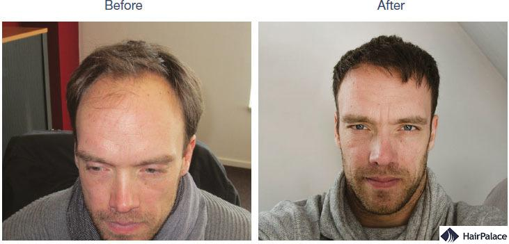 Hair transplantation references - HairPalace