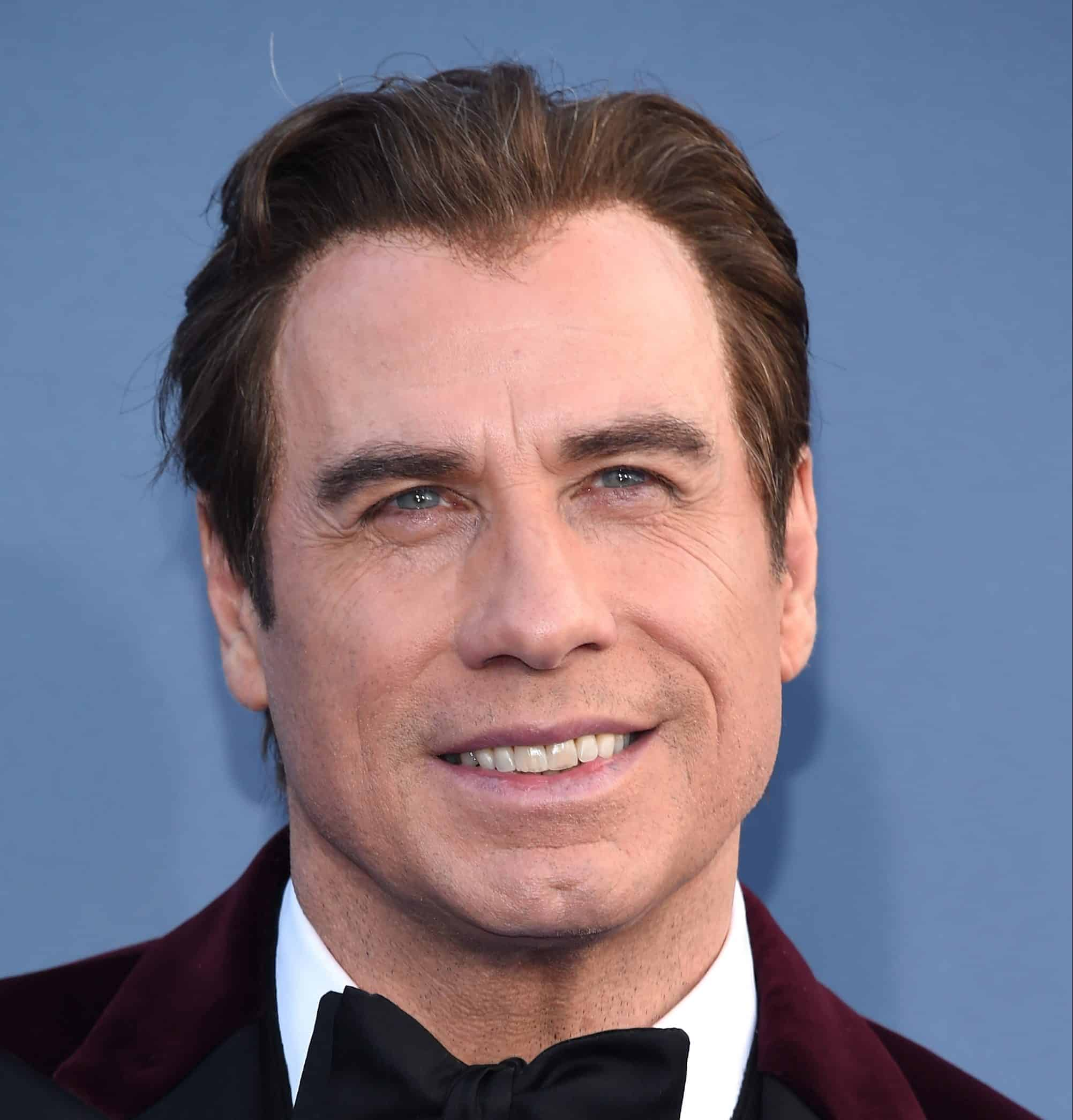 Travolta wearing a toupee with sing of it showing at the hairline