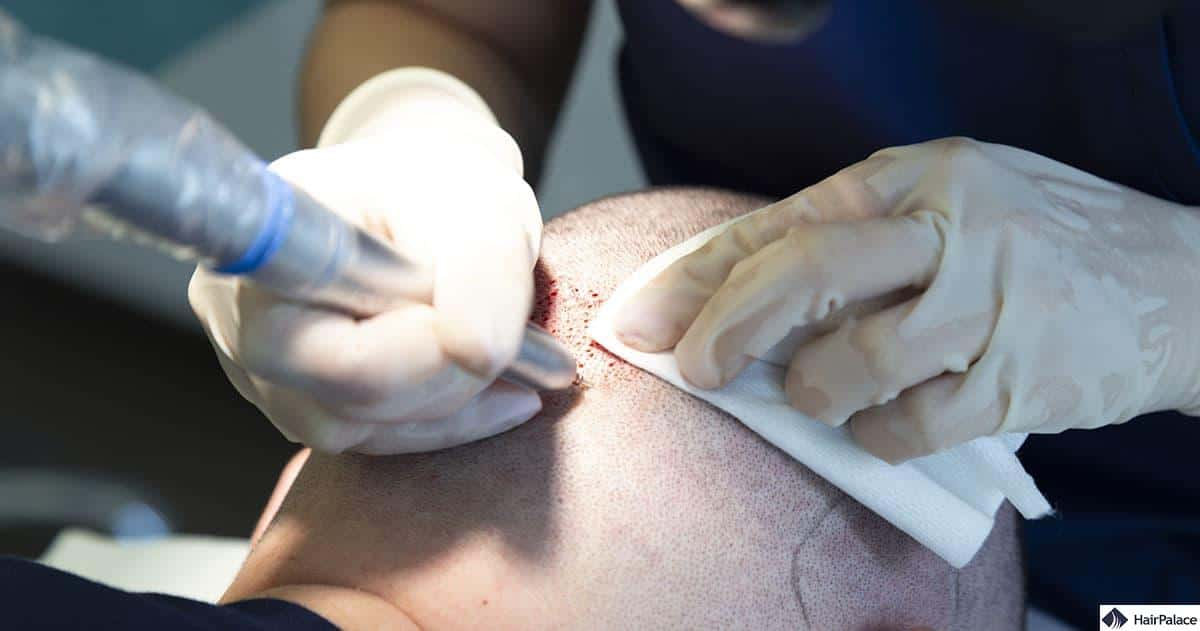 surgeon extracting hairs with the FUE SafeScribe