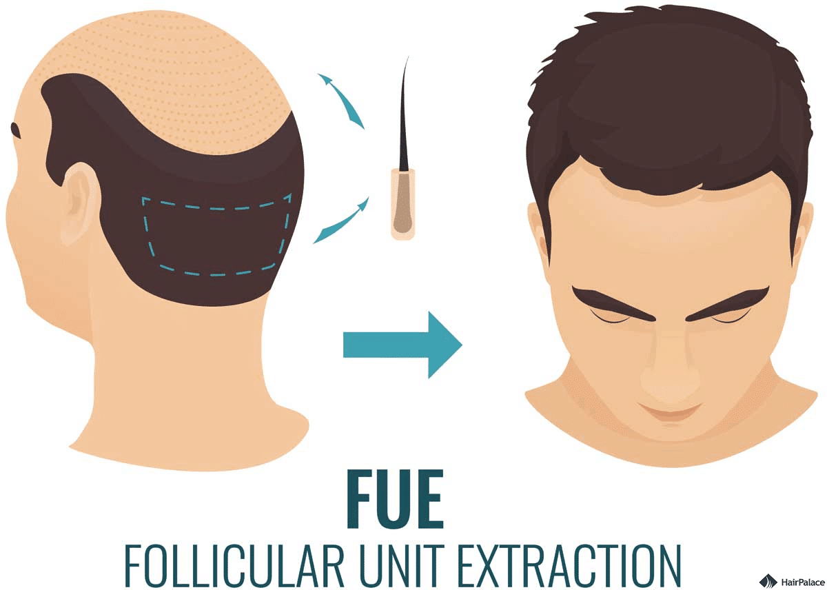 follicular unit extraction or fue hair transplant method