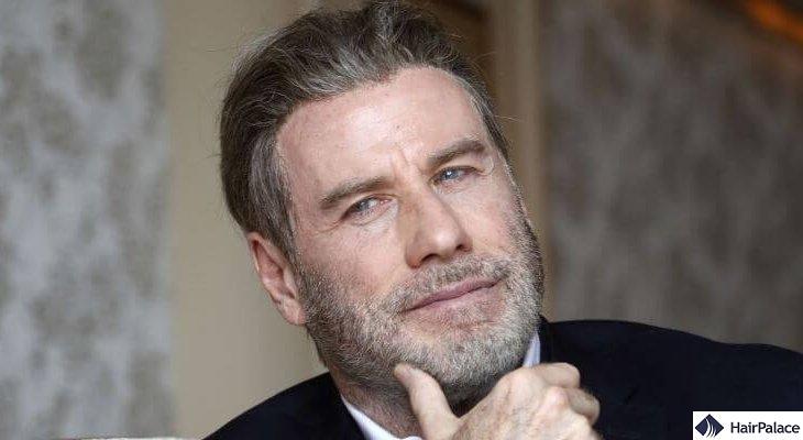 John Travolta hair transplant