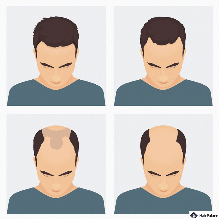 What is Male Pattern Baldness and Can it be Cured ...