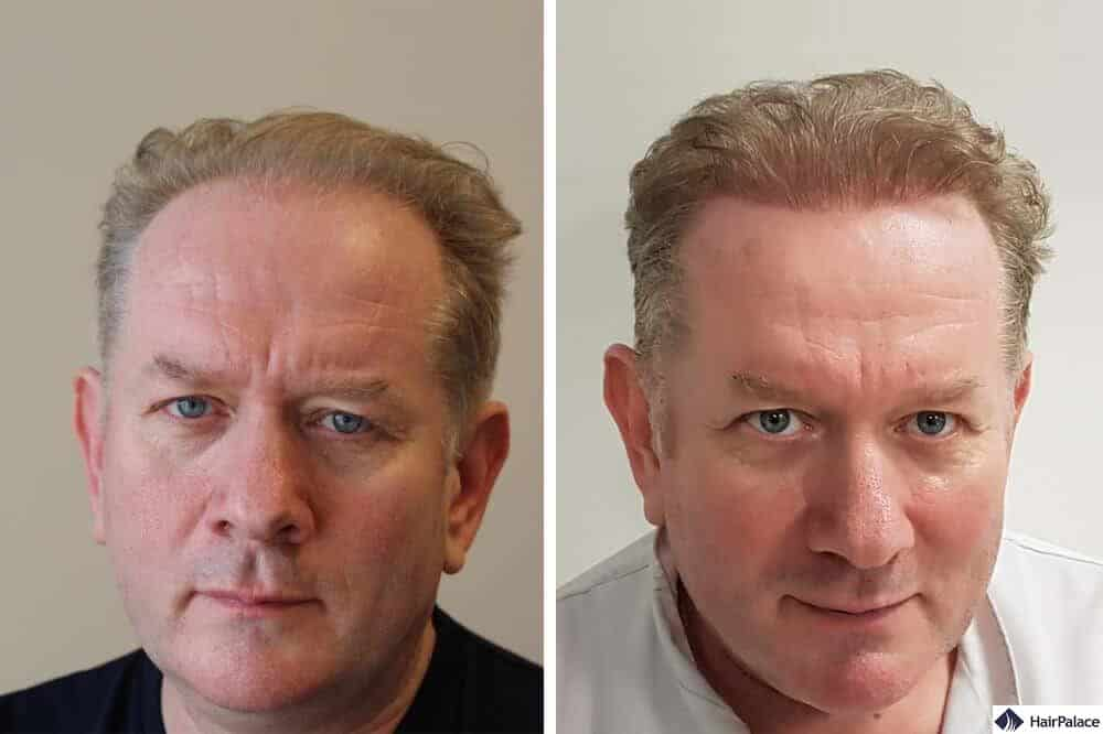 Regis before after hairtransplant