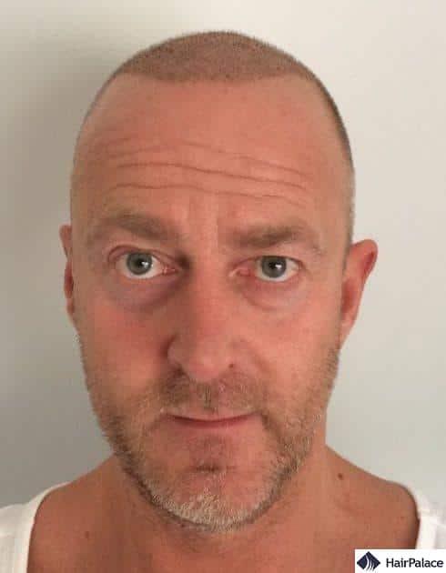 Richard 1 week after hair transplant