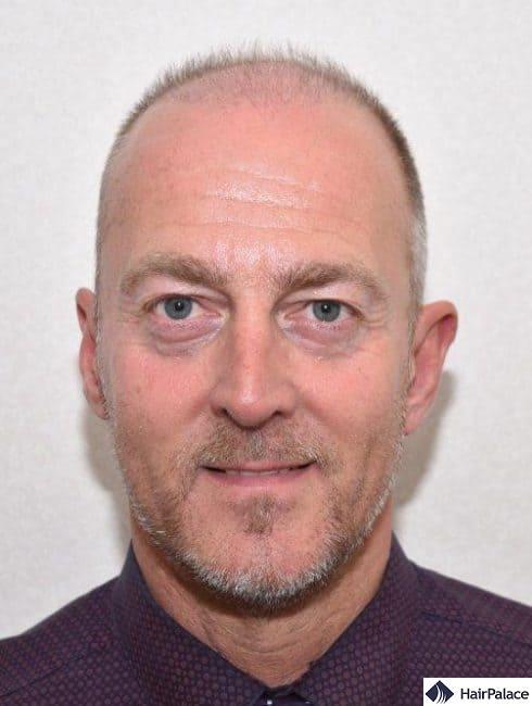 Richard 3 months after hair transplant