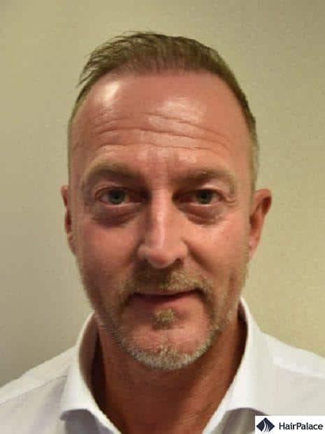 Richard 6 months after hair transplant