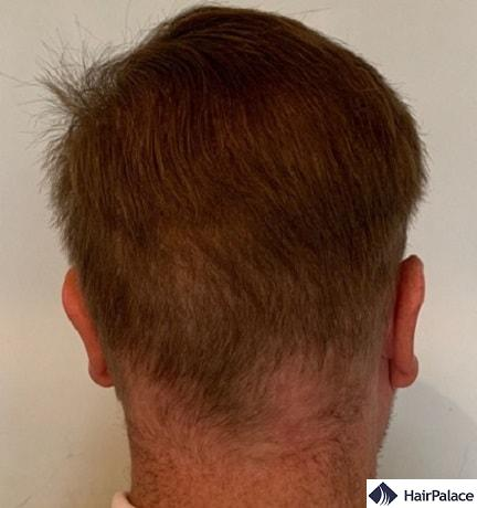 Result of hair transplants on the donor area
