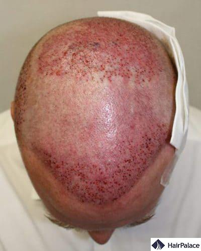Area implanted with the 3rd hair transplant