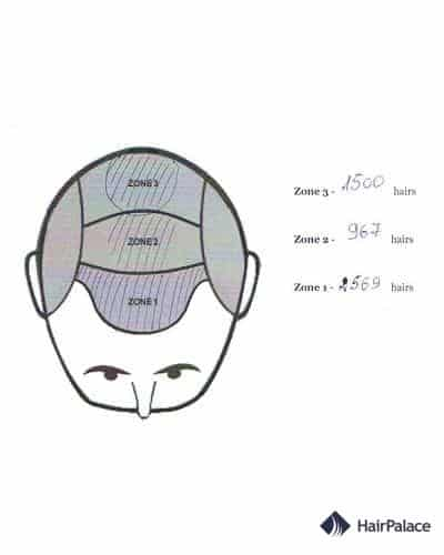 distribution of hairs in the 2nd hair transplant