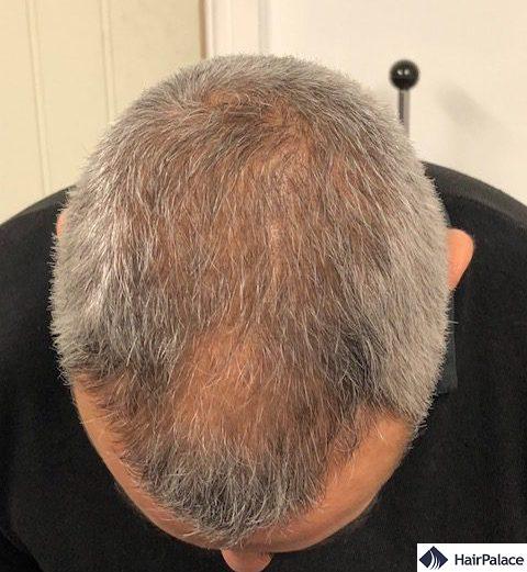density restoration - 3 months after hair transplant