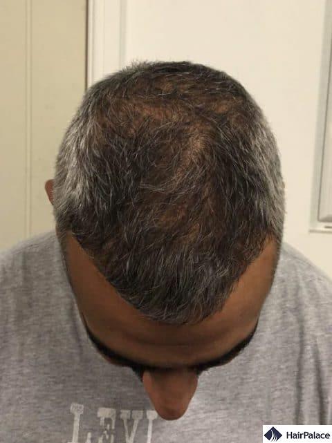 density restoration - 6 months after hair transplant