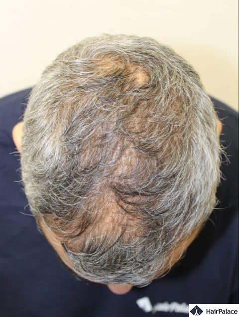 density restoration - before hair transplant surgery