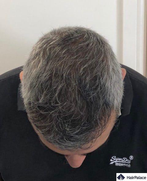 density restoration - result 1 year after the hair transplant
