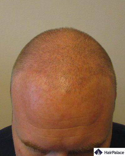 David's result after one hair transplant