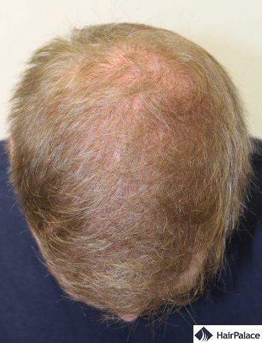 David's hair transplant result - after 2 procedures