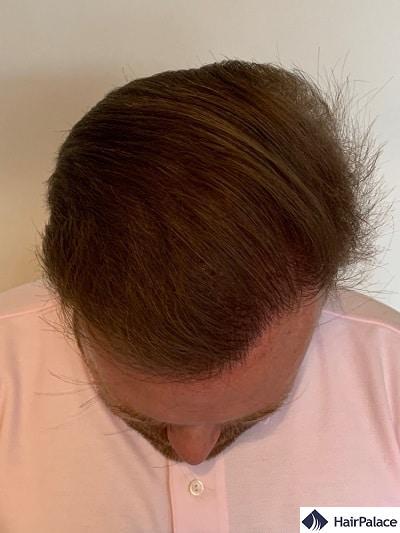 David's final hair transplant result