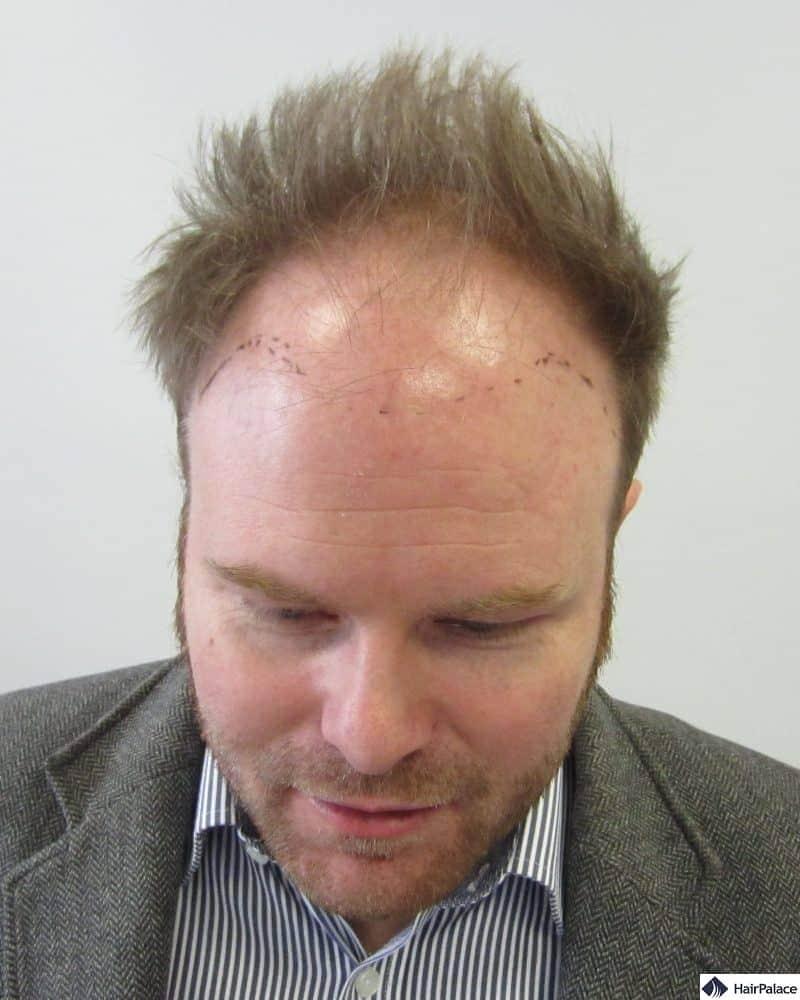 David before his hair transplant surgeries