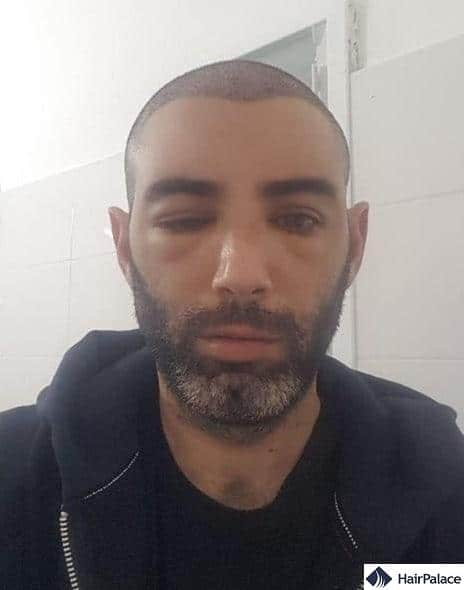 swollen eyes and forehead a few days after the hair transplant