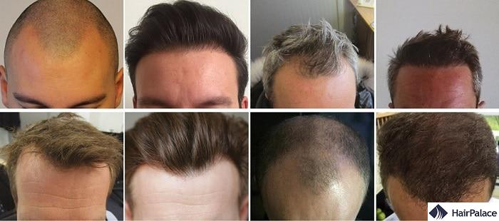 Hairline Surgery - HairPalace