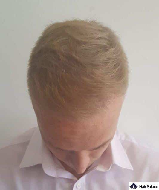 Top of scalp 6 months after surgery