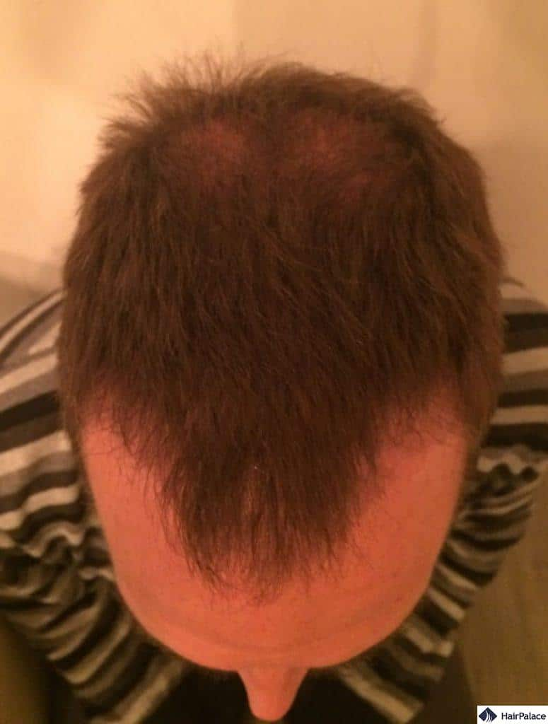 Hairline and frontal area 3 months after procedure