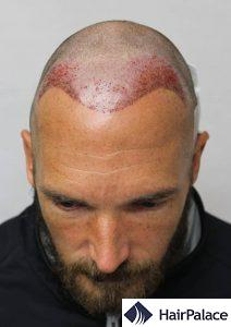 Recipient area after the hair transplant surgery