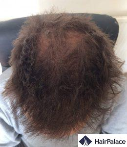 High and even density at the front 6 months post hair transplant