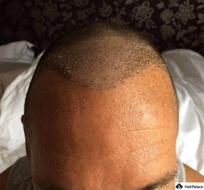 Implanted area with scabs 1 week after the hair transplant