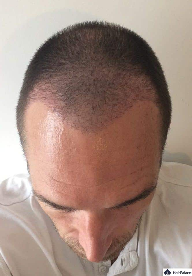 The recipient area 3 weeks post hair transplant