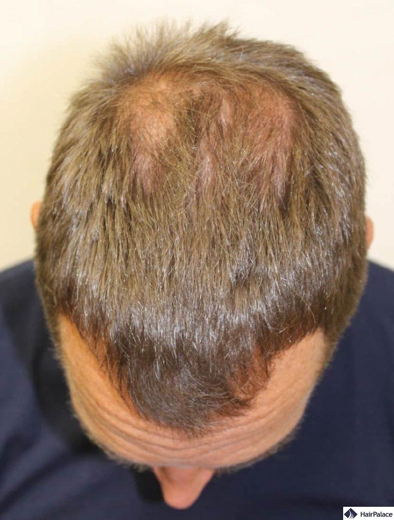 Hairline and the frontal area before the hair transplant