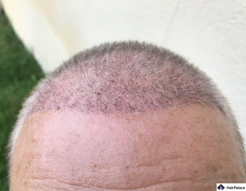 Denis' implanted hairline 3 weeks after the hair transplant