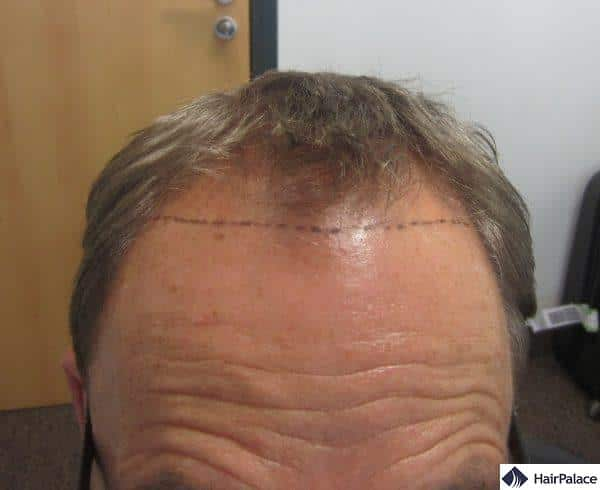 hairline draft made at the consultation